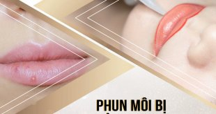 Tissue Watering Lip Spray Should Not Be Ignored