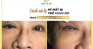 Treatment of Blue, Red-Eye Eyelids in a Smooth, Natural New Eyelid 5