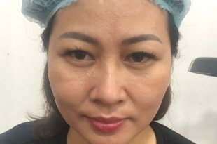 Practitioner Treats Old Eyebrows - Head Sculpting & Spraying Ombre Eyebrow For Guests 3