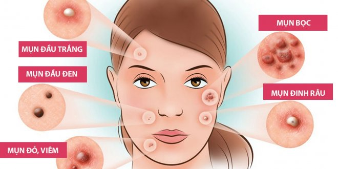 How to Pick Acne The Right Way And Without Dark Scars 1