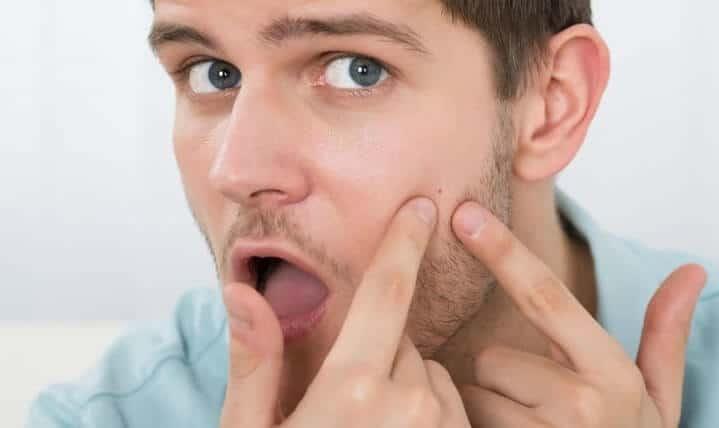 How Are Oily Skin In Men? 3