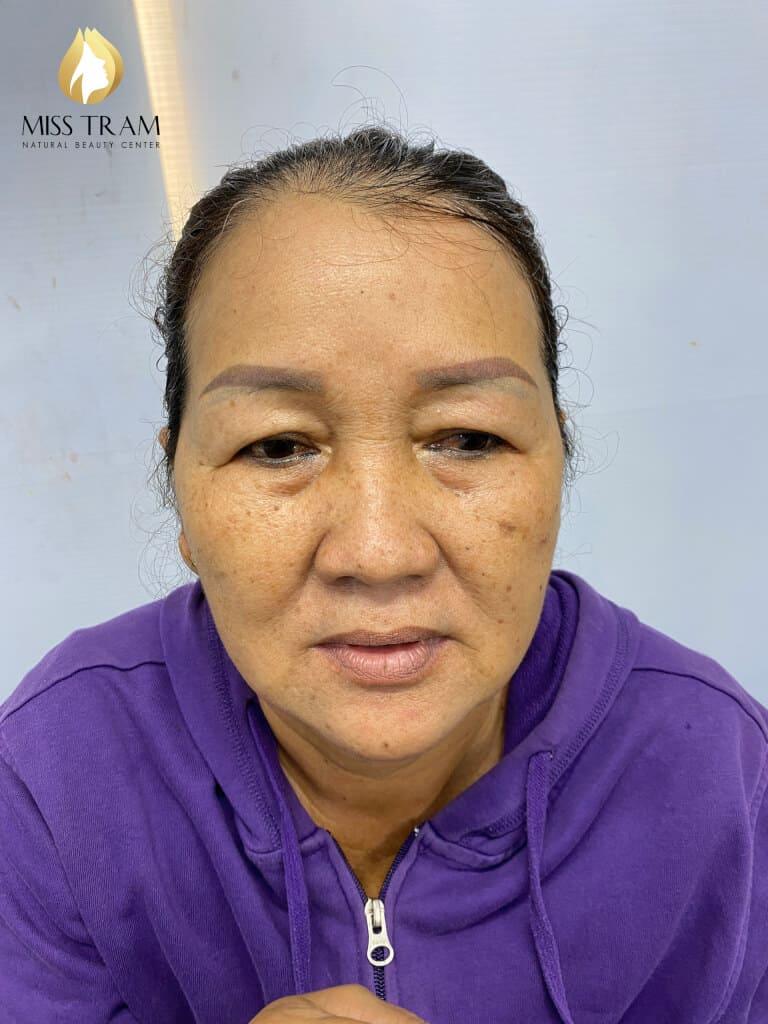 Student Model Blue / Red Eyebrow Treatment Refitting Black Brown 2