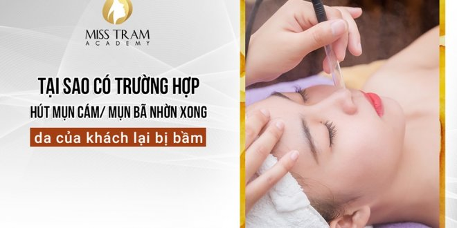 Why Absorb Cam Bran, Oily Skin Acne Done Clients' Bruises 1