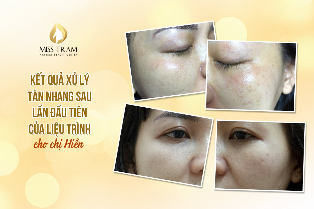 freckle treatment technology at spa