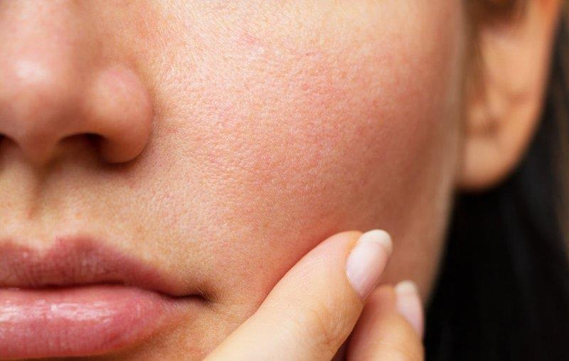 Causes of large pores