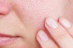 cách khắc phục da mặt có lỗ chân lông to