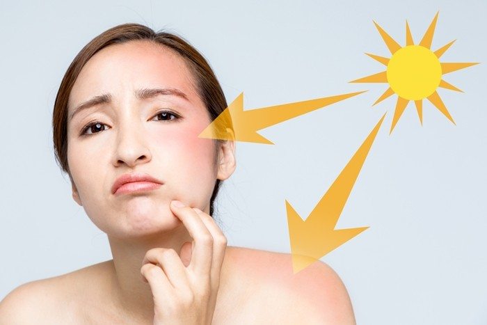 What causes enlarged pores?